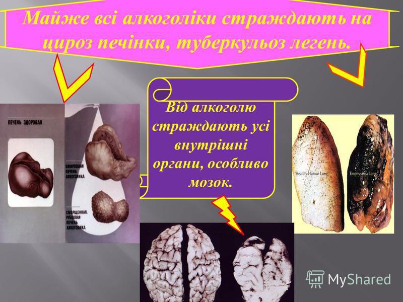 Від алкоголю страждають усі внутрішні органи, особливо мозок. Майже всі алкоголіки страждають на цироз печінки, туберкульоз легень.