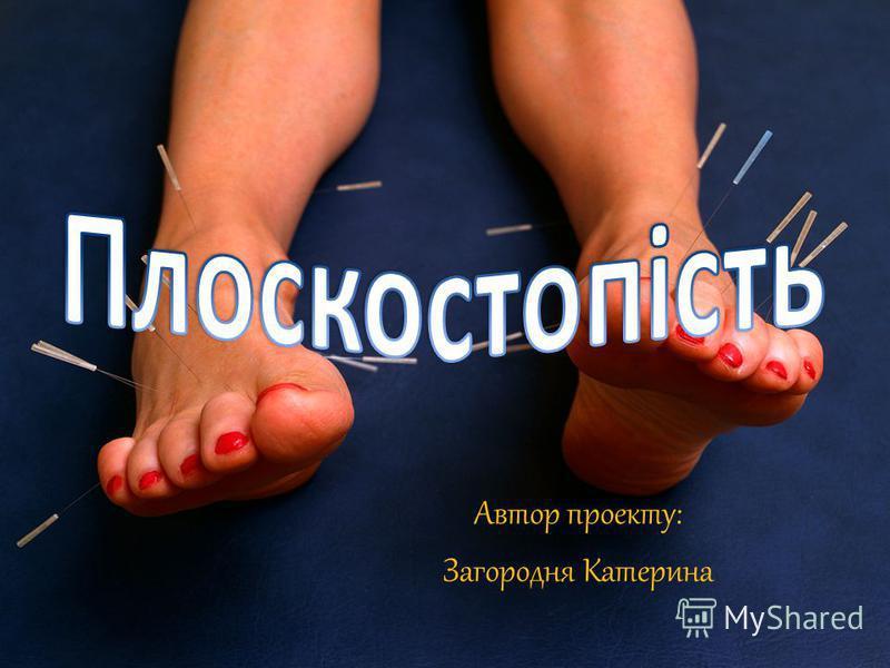 Автор проекту: Загородня Катерина
