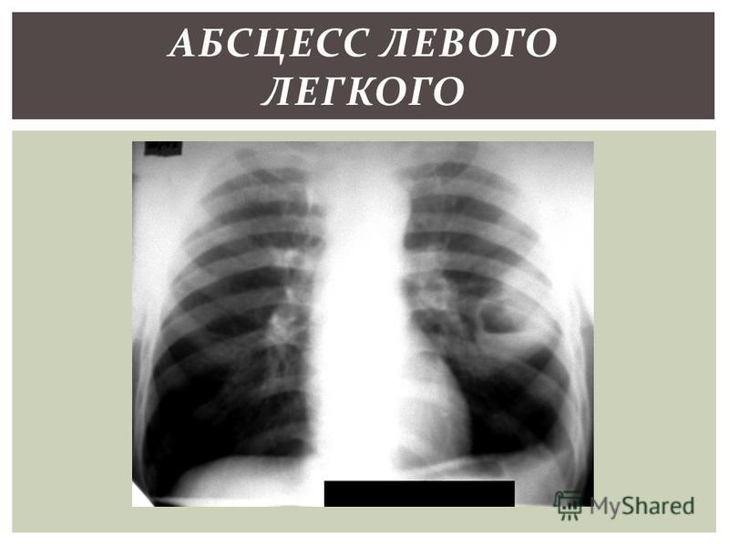 АБСЦЕСС ЛЕВОГО ЛЕГКОГО