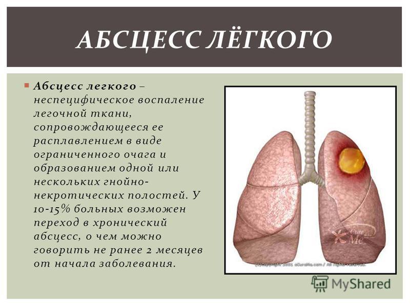 Абсцесс легкого – неспецифическое воспаление легочной ткани, сопровождающееся ее расплавлением в виде ограниченного очага и образованием одной или нескольких гнойно- некротических полостей. У 10-15% больных возможен переход в хронический абсцесс, о ч