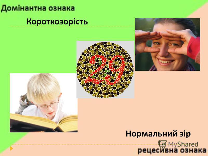 Короткозорість Нормальний зір