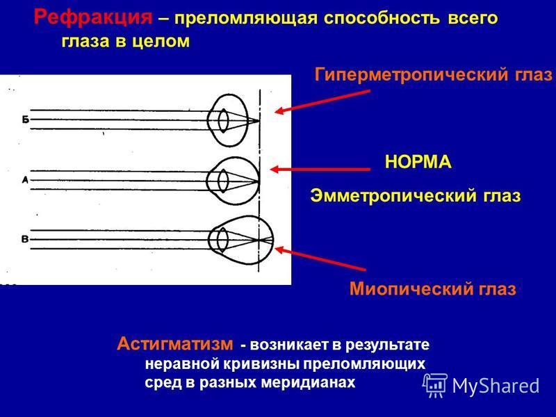 Рефракция – преломляющая способность всего глаза в целом Гиперметропический глаз Миопический глаз НОРМА Эмметропический глаз Астигматизм - возникает в результате неравной кривизны преломляющих сред в разных меридианах