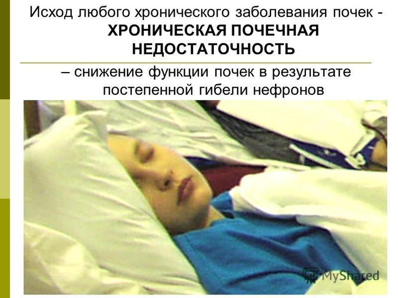 Исход любого хронического заболевания почек - ХРОНИЧЕСКАЯ ПОЧЕЧНАЯ НЕДОСТАТОЧНОСТЬ – снижение функции почек в результате постепенной гибели нефронов