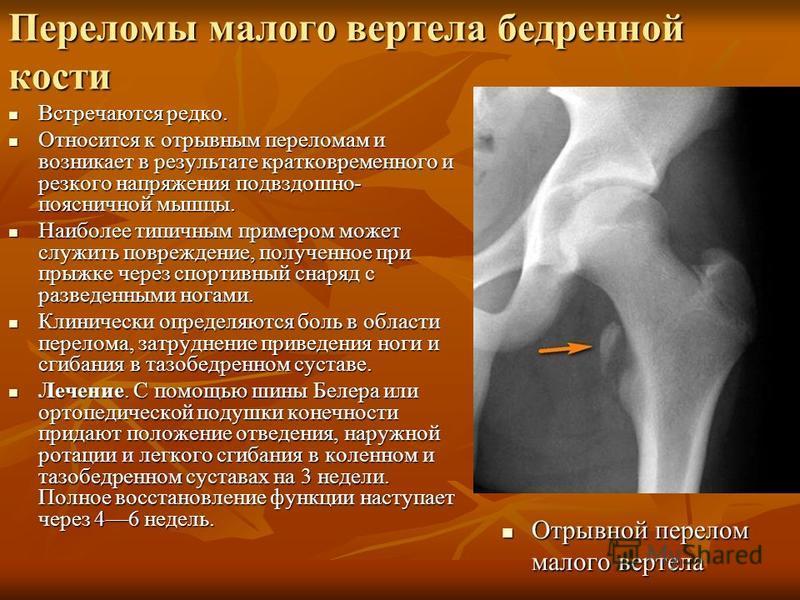 Переломы малого вертела бедренной кости Встречаются редко. Встречаются редко. Относится к отрывным переломам и возникает в результате кратковременного и резкого напряжения подвздошно- поясничной мышцы. Относится к отрывным переломам и возникает в рез
