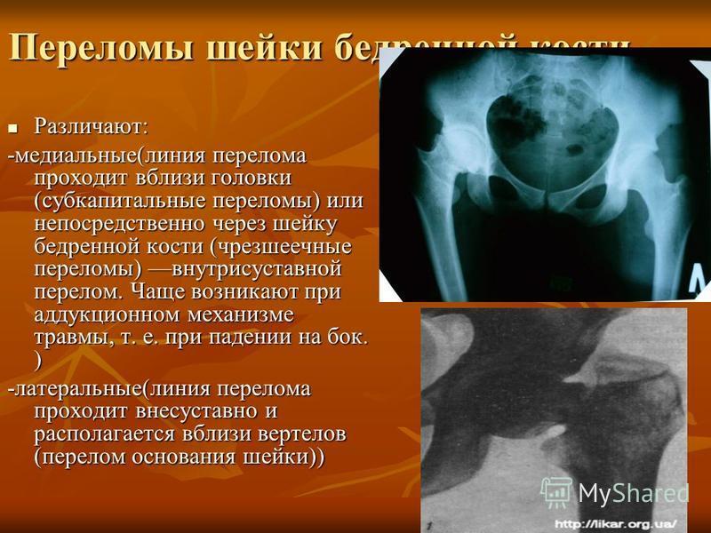 Переломы шейки бедренной кости Различают: Различают: -медиальные(линия перелома проходит вблизи головки (субкапитальные переломы) или непосредственно через шейку бедренной кости (чресшеечные переломы) внутрисуставной перелом. Чаще возникают при аддук