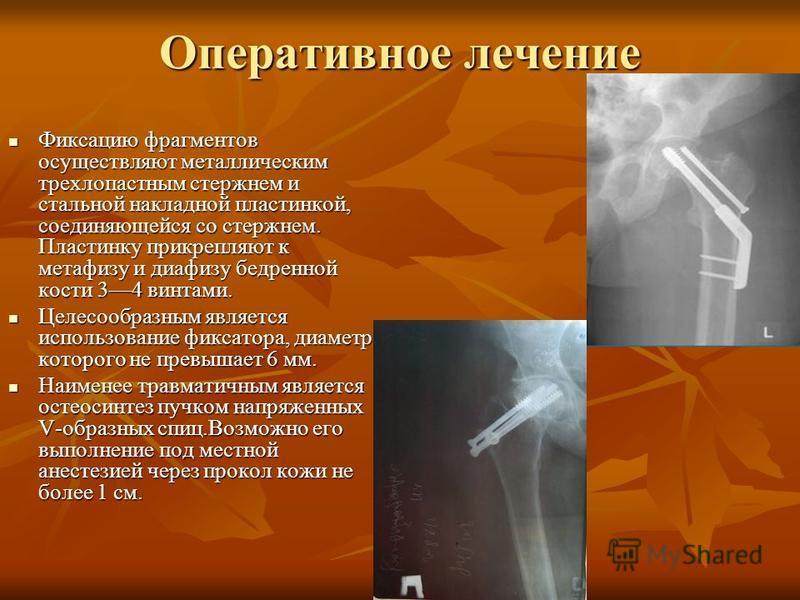 Оперативное лечение Фиксацию фрагментов осуществляют металлическим трехлопастным стержнем и стальной накладной пластинкой, соединяющейся со стержнем. Пластинку прикрепляют к метафизу и диафизу бедренной кости 34 винтами. Фиксацию фрагментов осуществл