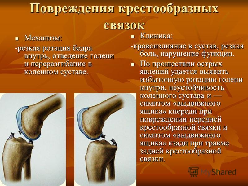 Повреждения крестообразных связок Механизм: Механизм: -резкая ротация бедра внутрь, отведение голени и переразгибание в коленном суставе. Клиника: Клиника: -кровоизлияние в сустав, резкая боль, нарушение функции. По прошествии острых явлений удается
