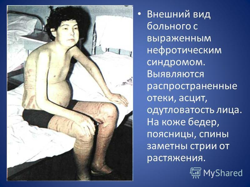 Внешний вид больного с выраженным нефротическим синдромом. Выявляются распространенные отеки, асцит, одутловатость лица. На коже бедер, поясницы, спины заметны стрии от растяжения.