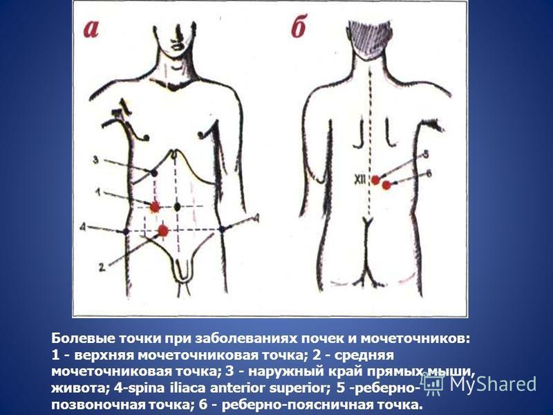 Болевые точки при заболеваниях почек и мочеточников: 1 - верхняя мочеточниковая точка; 2 - средняя мочеточниковая точка; 3 - наружный край прямых мыши, живота; 4-spina iliaca anterior superior; 5 -реберно- позвоночная точка; 6 - реберно-поясничная то