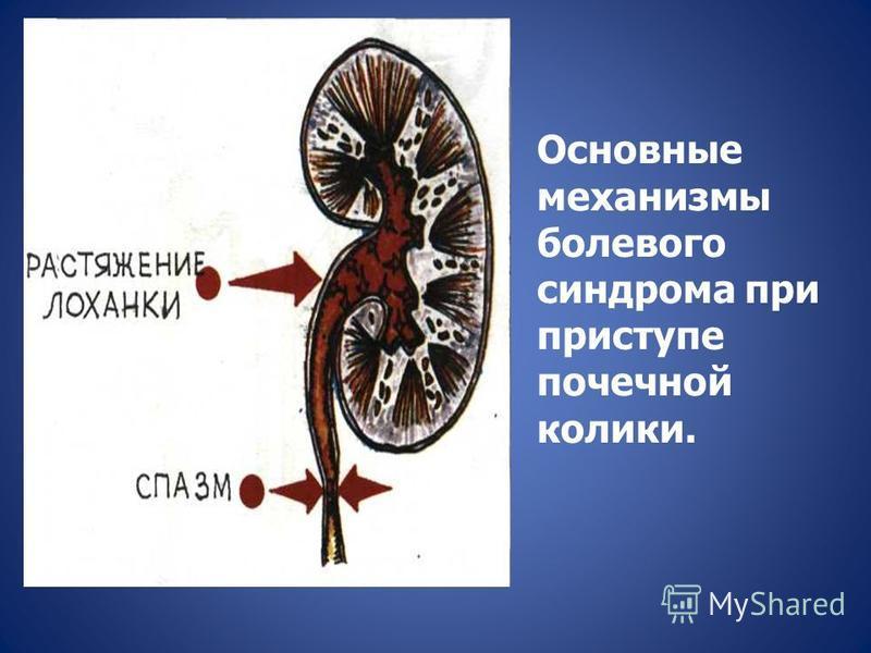 Основные механизмы болевого синдрома при приступе почечной колики.