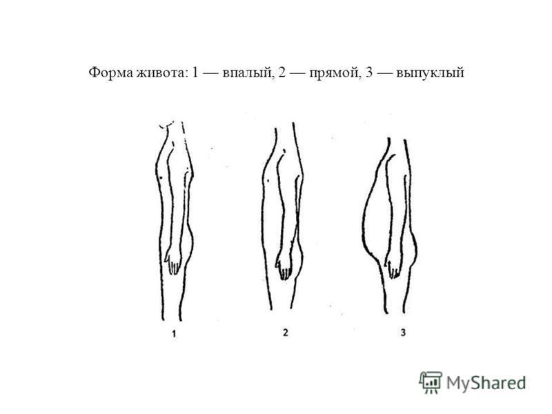 Форма живота: 1 впалый, 2 прямой, 3 выпуклый