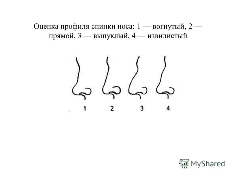 Оценка профиля спинки носа: 1 вогнутый, 2 прямой, 3 выпуклый, 4 извилистый