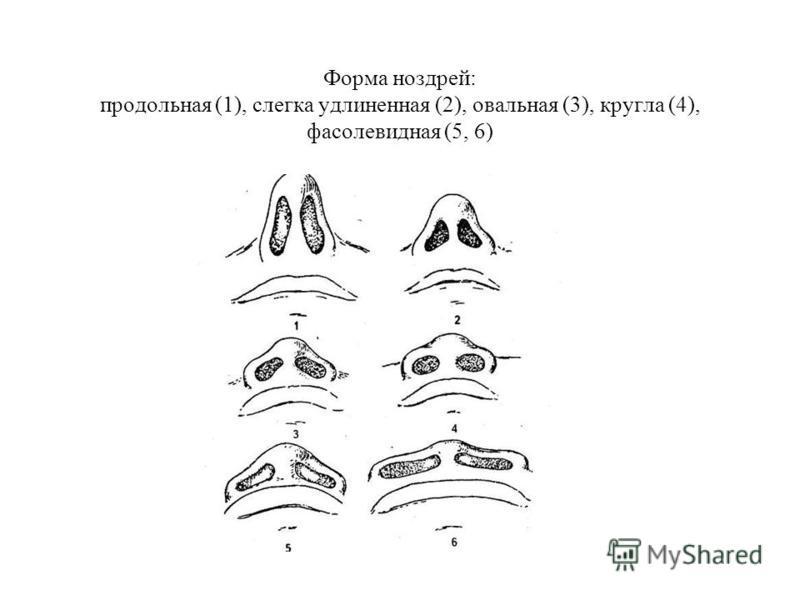 Форма ноздрей: продольная (1), слегка удлиненная (2), овальная (3), кругла (4), фасолевидная (5, 6)