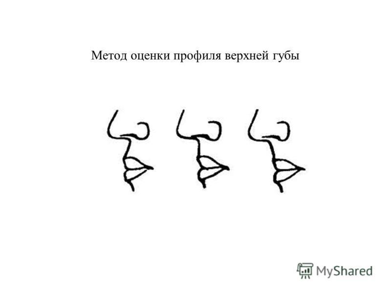 Метод оценки профиля верхней губы