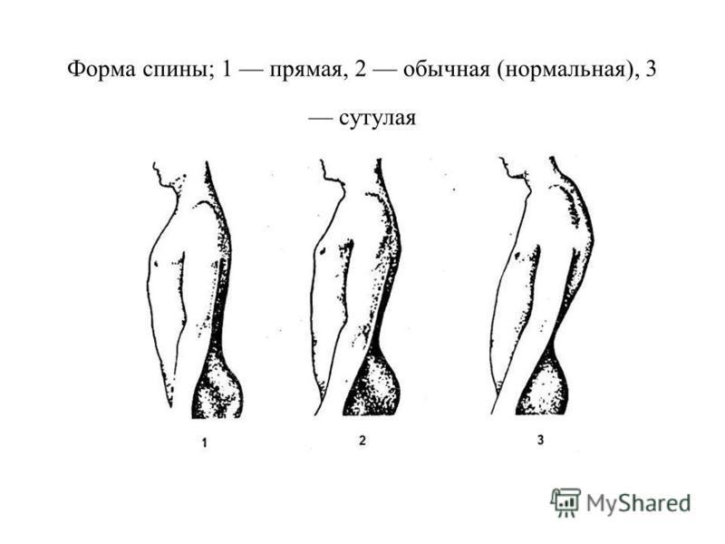 Форма спины; 1 прямая, 2 обычная (нормальная), 3 сутулая