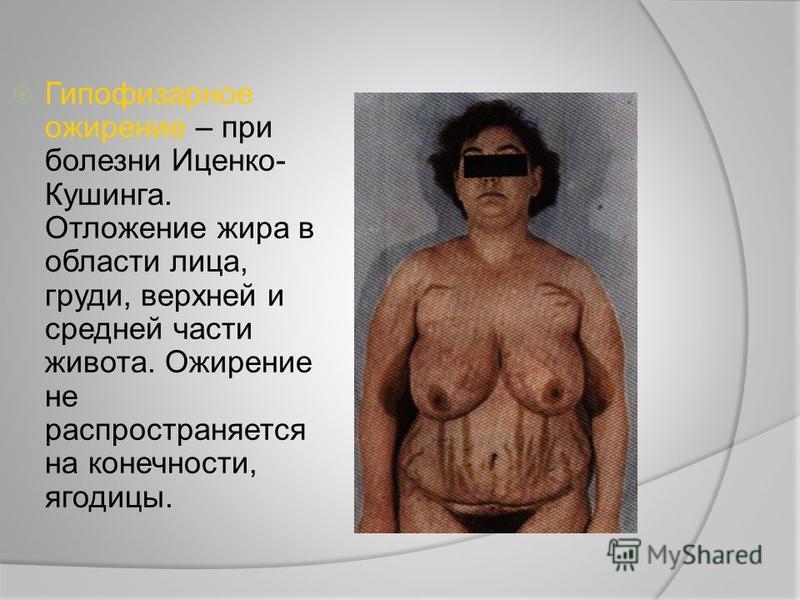 Гипофизарное ожирение – при болезни Иценко- Кушинга. Отложение жира в области лица, груди, верхней и средней части живота. Ожирение не распространяется на конечности, ягодицы.