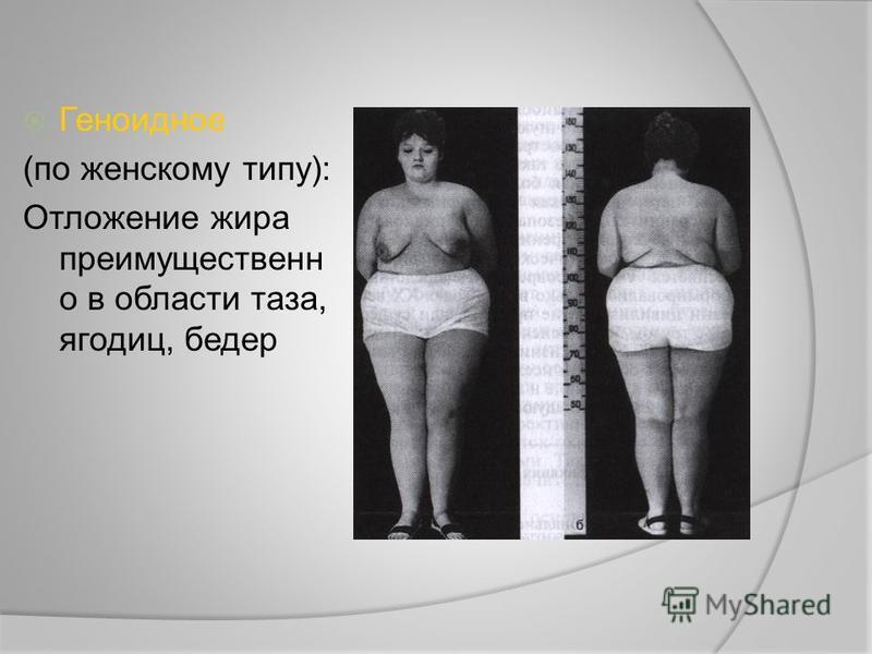 Геноидное (по женскому типу): Отложение жира преимущественно в области таза, ягодиц, бедер