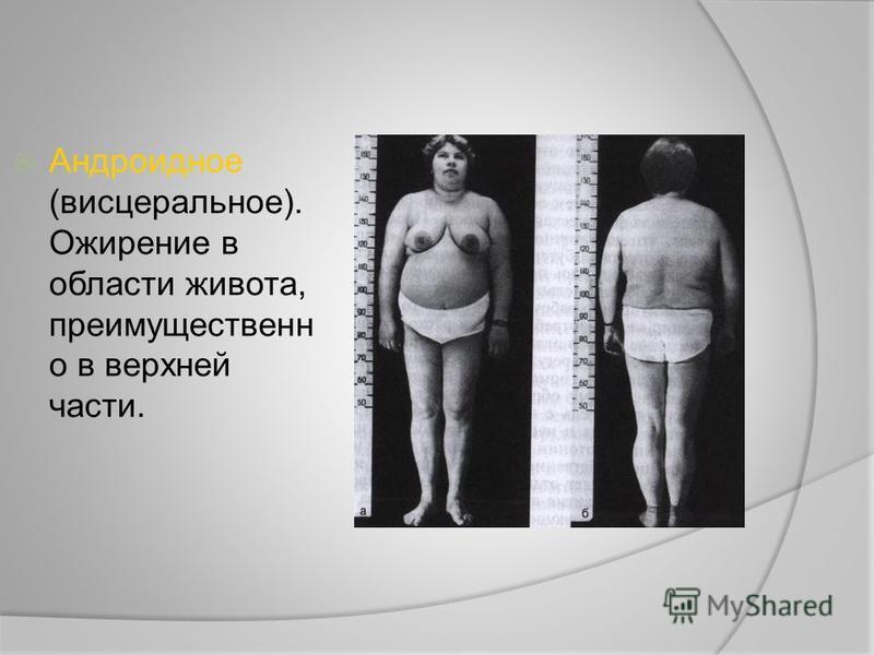 Андроидное (висцеральное). Ожирение в области живота, преимущественно в верхней части.