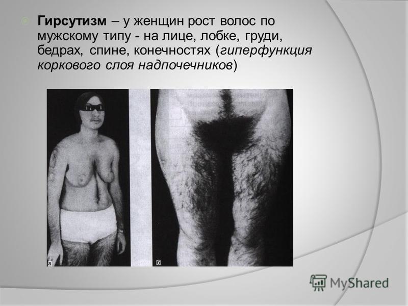 Гирсутизм – у женщин рост волос по мужскому типу - на лице, лобке, груди, бедрах, спине, конечностях (гиперфункция коркового слоя надпочечников)