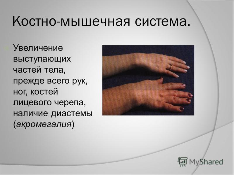 Костно-мышечная система. Увеличение выступающих частей тела, прежде всего рук, ног, костей лицевого черепа, наличие диастемы (акромегалия)