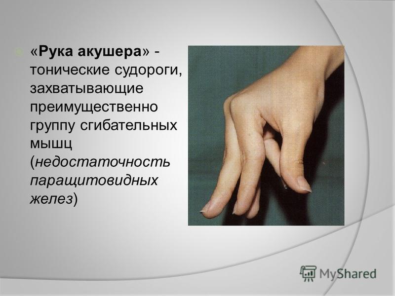 «Рука акушера» - тонические судороги, захватывающие преимущественно группу сгибательных мышц (недостаточность паращитовидных желез)