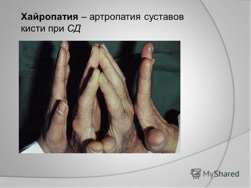 Хайропатия – артропатия суставов кисти при СД