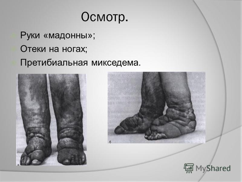 Осмотр. Руки «мадонны»; Отеки на ногах; Претибиальная микседема.