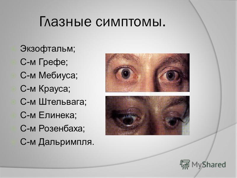 Глазные симптомы. Экзофтальм; С-м Грефе; С-м Мебиуса; С-м Крауса; С-м Штельвага; С-м Елинека; С-м Розенбаха; С-м Дальримпля.