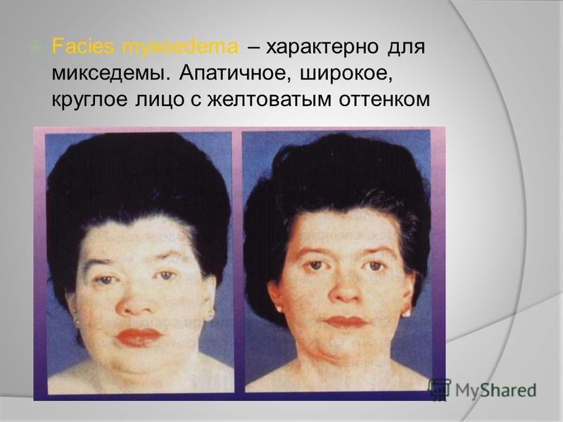 Facies myxoedema – характерно для микседемы. Апатичное, широкое, круглое лицо с желтоватым оттенком