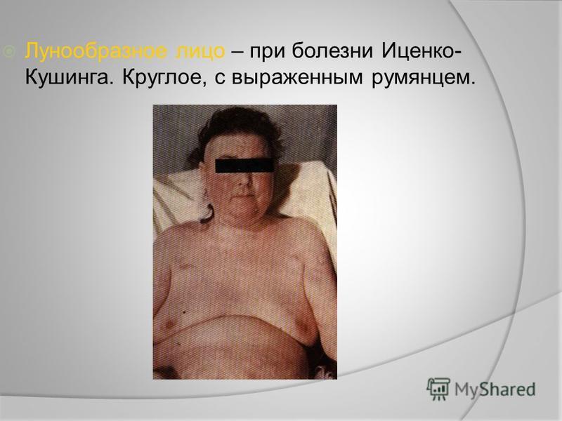 Лунообразное лицо – при болезни Иценко- Кушинга. Круглое, с выраженным румянцем.