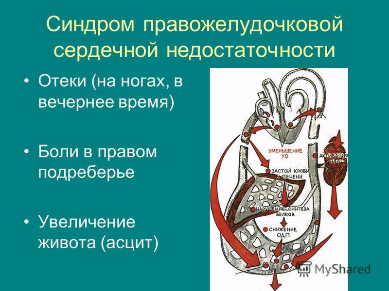 Синдром правожелудочковой сердечной недостаточности Отеки (на ногах, в вечернее время) Боли в правом подреберье Увеличение живота (асцит)