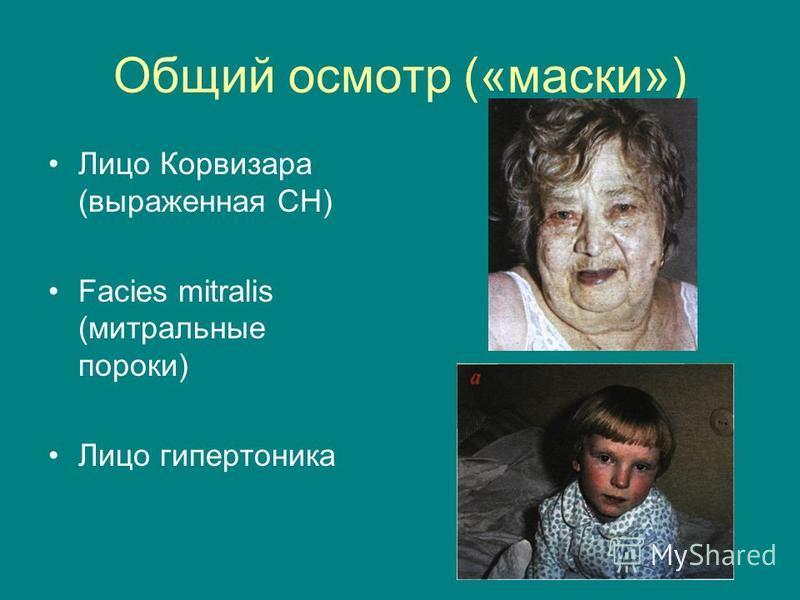 Общий осмотр («маски») Лицо Корвизара (выраженная СН) Facies mitralis (митральные пороки) Лицо гипертоника