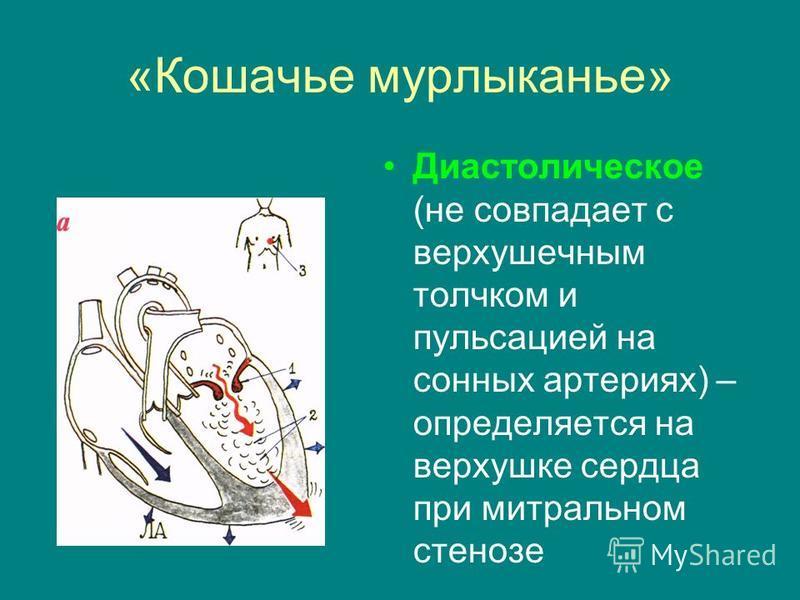 «Кошачье мурлыканье» Диастолическое (не совпадает с верхушечным толчком и пульсацией на сонных артериях) – определяется на верхушке сердца при митральном стенозе
