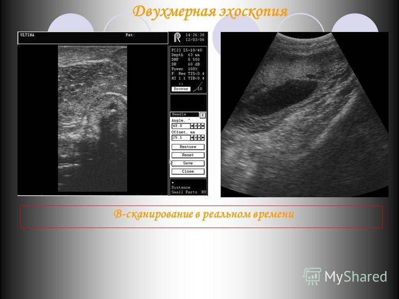 В-сканирование в реальном времени Двухмерная эхоскопия