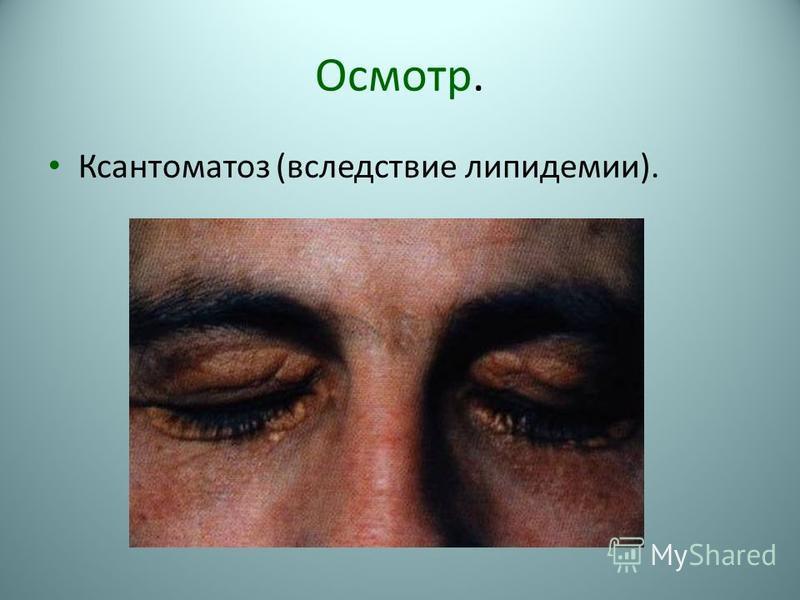 Осмотр. Ксантоматоз (вследствие липидемии).