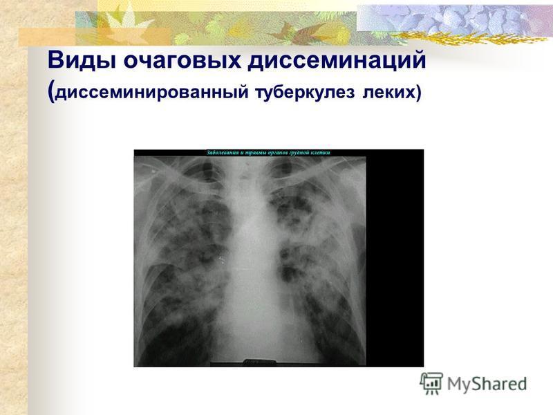 Виды очаговых диссеминаций ( диссеминированный туберкулез легких)