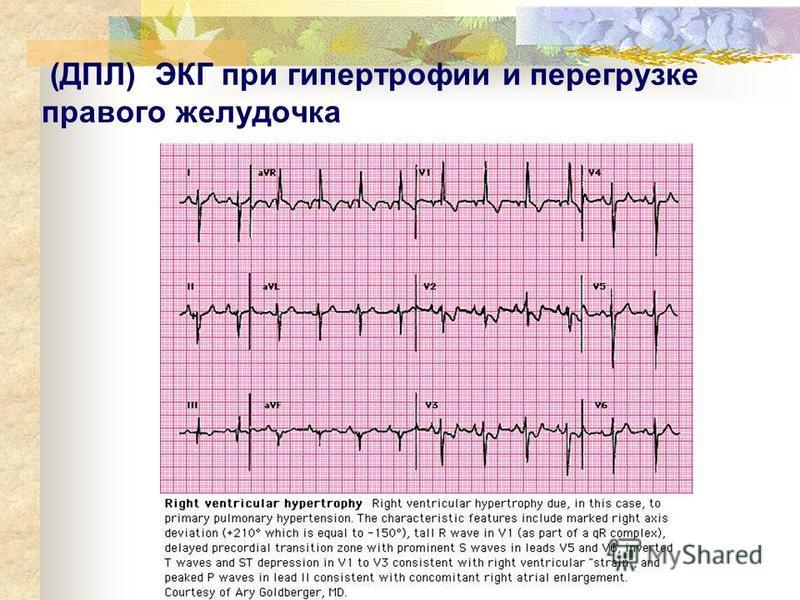 (ДПЛ) ЭКГ при гипертрофии и перегрузке правого желудочка