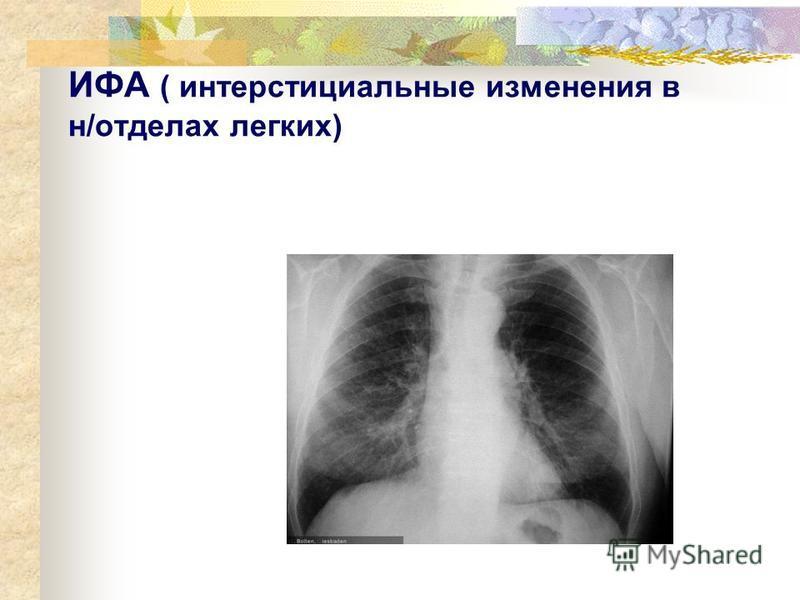 ИФА ( интерстициальные изменения в н/отделах легких)