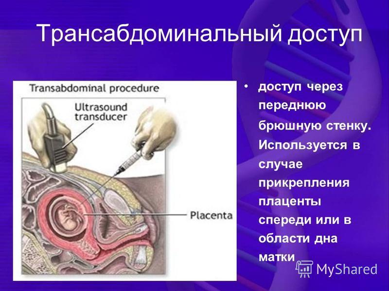 Трансабдоминальный доступ доступ через переднюю брюшную стенку. Используется в случае прикрепления плаценты спереди или в области дна матки