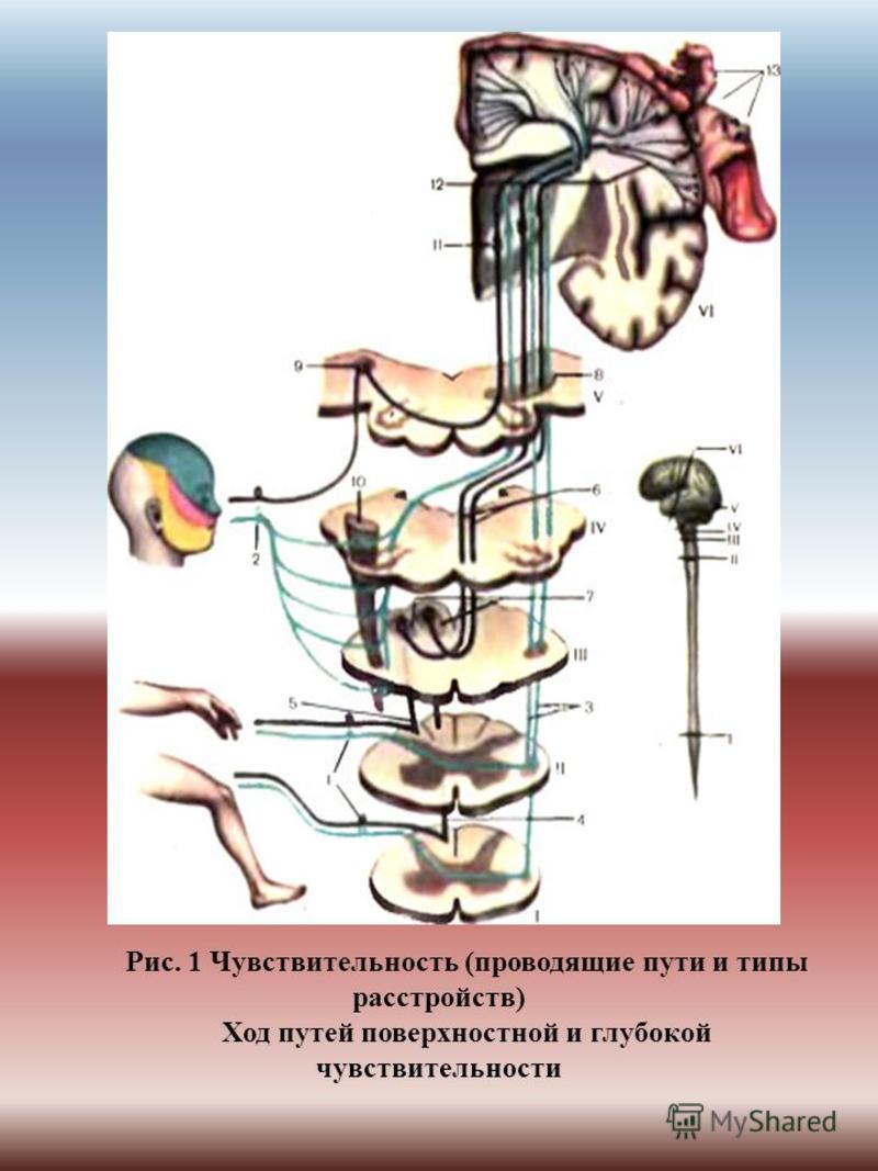 Рис. 1 Чувствительность (проводящие пути и типы расстройств) Ход путей поверхностной и глубокой чувствительности