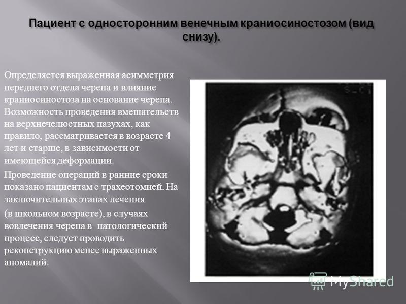 Пациент с односторонним венечным краниосиностозом ( вид снизу ). Определяется выраженная асимметрия переднего отдела черепа и влияние краниосиностоза на основание черепа. Возможность проведения вмешательств на верхнечелюстных пазухах, как правило, ра