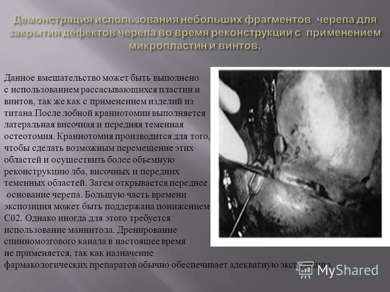 Данное вмешательство может быть выполнено с использованием рассасывающихся пластин и винтов, так же как с применением изделий из титана.После лобной краниотомии выполняется латеральная височная и передняя теменная остеотомия. Краниотомия производится