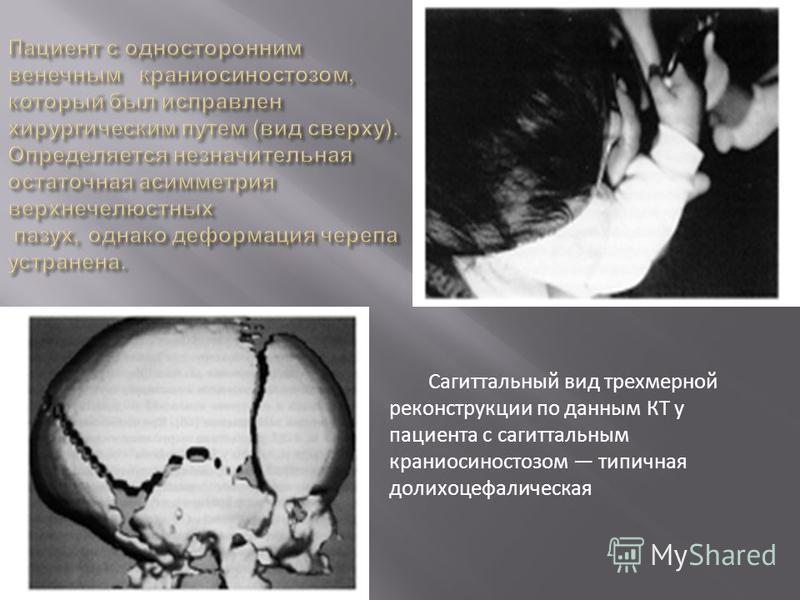 Сагиттальный вид трехмерной реконструкции по данным КТ у пациента с сагиттальным краниосиностозом типичная долихоцефалическая