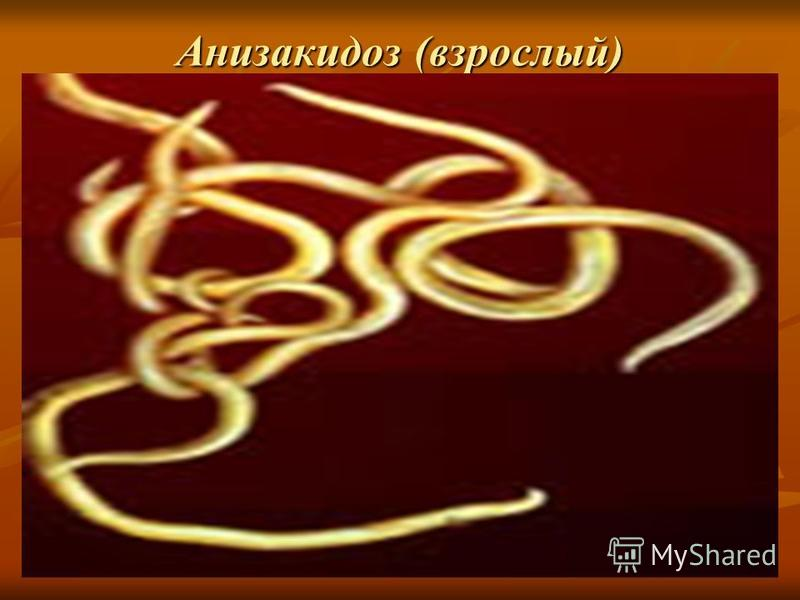 Анизакидоз (взрослый)