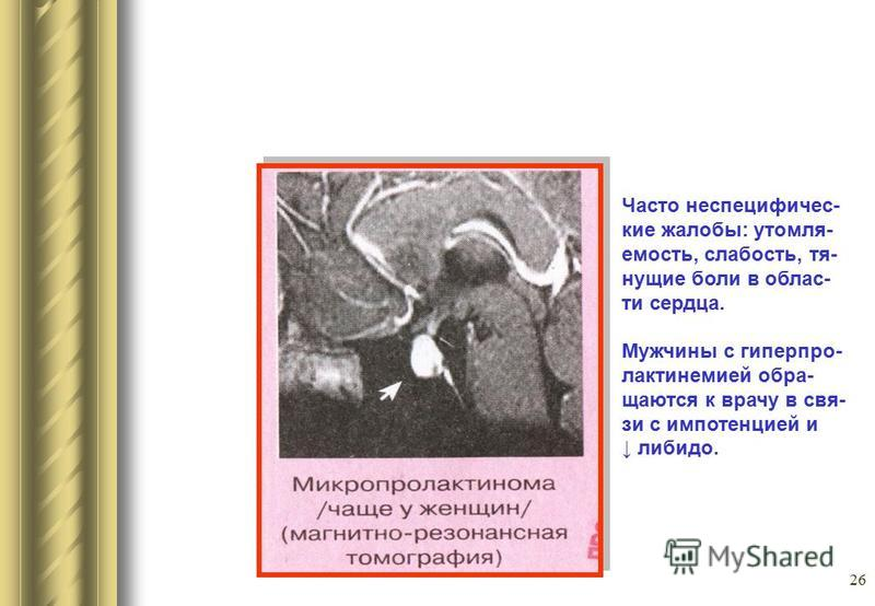 26 Часто неспецифичес- кие жалобы: утомля- емость, слабость, тя- нущие боли в облас- ти сердца. Мужчины с гиперпро- лактинемией обра- щаются к врачу в свя- зи с импотенцией и либидо.