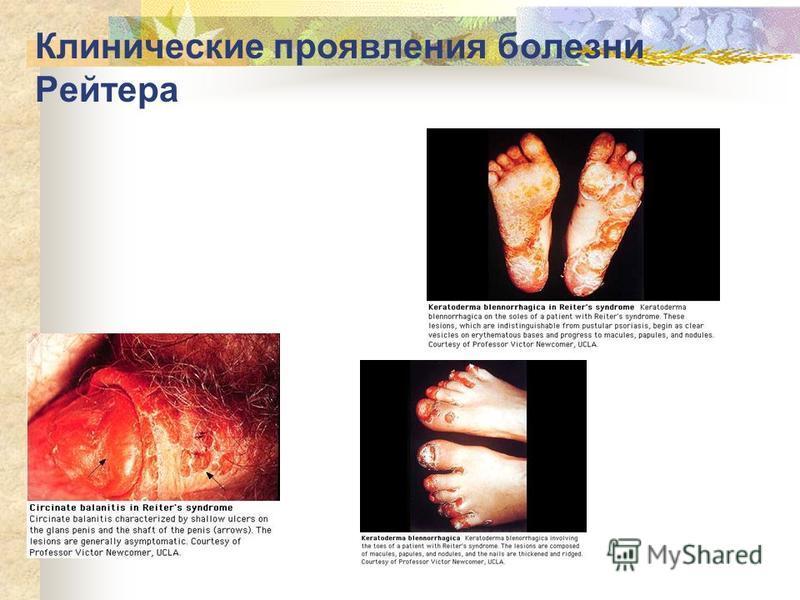 Клинические проявления болезни Рейтера