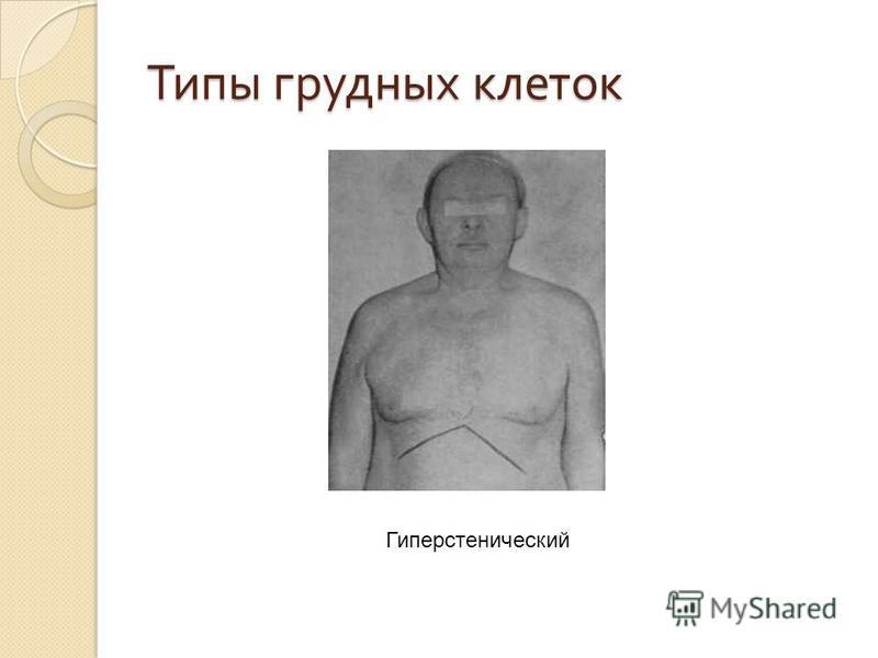 Типы грудных клеток Гиперстенический