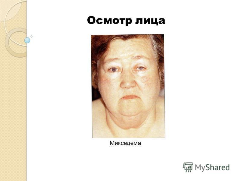 Микседема Осмотр лица