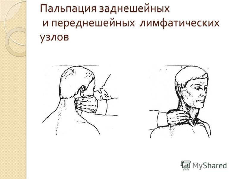 Пальпация заднешейных и передне шейных лимфатических узлов