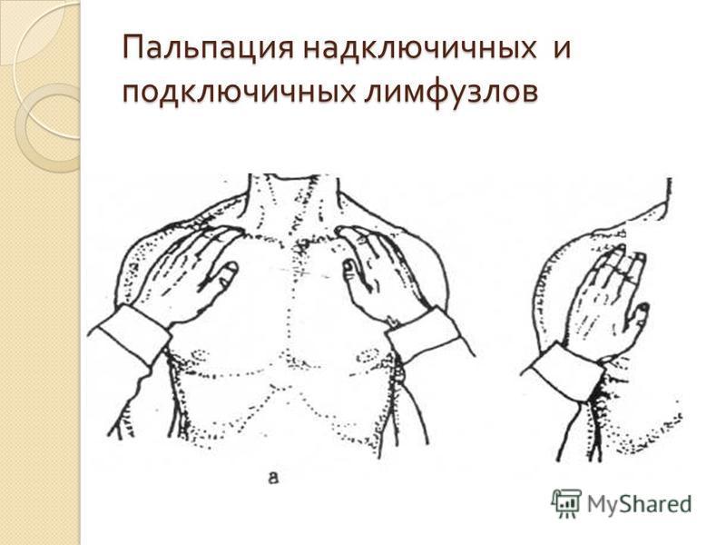 Пальпация надключичных и подключичных лимфоузлов
